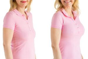borstvergroting behandeling